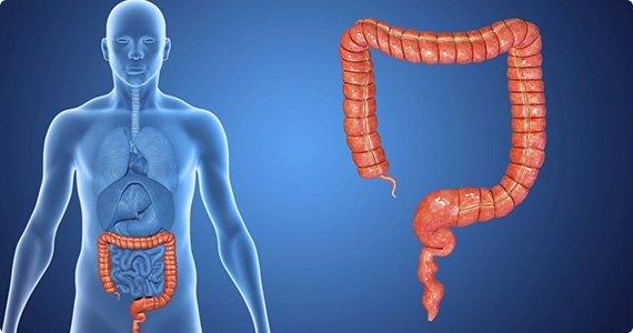 Colon Cancer And Rectal Cancer Nexus Surgical Associates